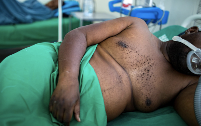 'There's a big difference between the first variant and this one': Mozambique's Covid crisis – The Telegraph (image)